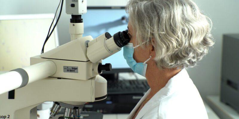 El Área de la Mama del Hospital Universitario del Vinalopó revoluciona el diagnóstico del cáncer de mama y hace la firma genética en la biopsia inicial